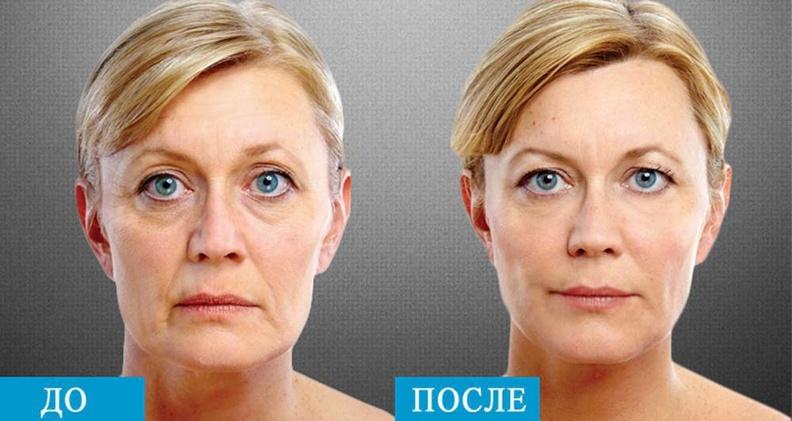 Подтяжка лица с помощью процедур Альтера лифтинг и Термаж