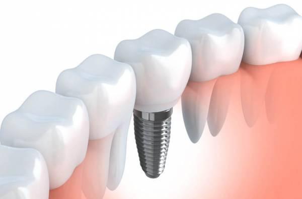 что семь имплантация зубов санкт петербург вокруг первичного очага