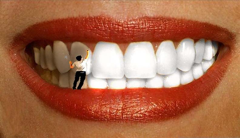 Способы и методики отбеливания зубов